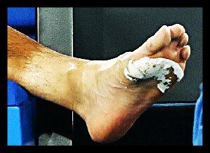 chung_foot_ao18
